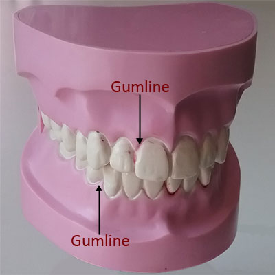 Tooth Structure for Kids - The Gumline