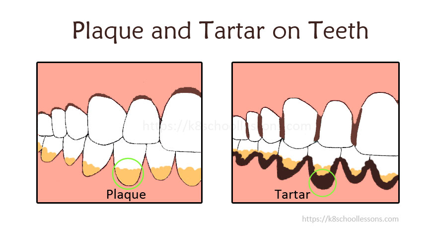 Plaque and Tartar on Teeth