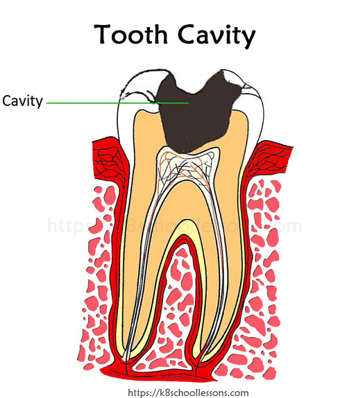 How is tooth cavity formed? What is tooth cavity?