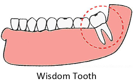 supernatural beliefs about wisdom tooth A supernatural helper – it is much easier, however, to gather reliable data on religious activities or the functioning of these beliefs in actual life in the plains , as well as in some other parts of the continent, the ideal is for all males to establish some kind of direct relation with a divine element or power.